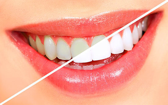 Professional Teeth Whitening and Bleaching